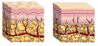 Pelle con e senza cellulite